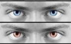 Vente de lentilles de contact : assouplissement ou encadrement ?