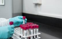 Tests Covid : un coût de plus de 100 millions d'euros par semaine